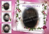 Масло от интенсивного выпадения волос (облысения) с имбирём